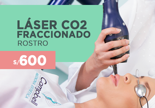500-LASER